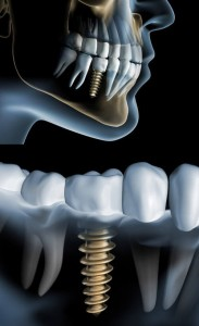 Dental Implants Example