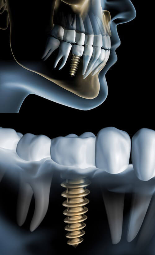 Dental Implants Example