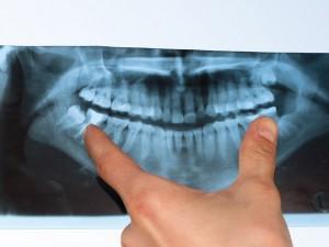 Wisdom Tooth X-Ray