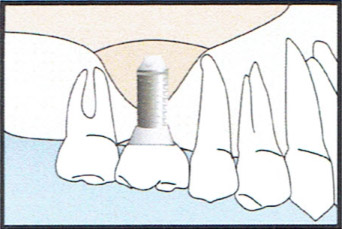 Bone Graft Diagram 3