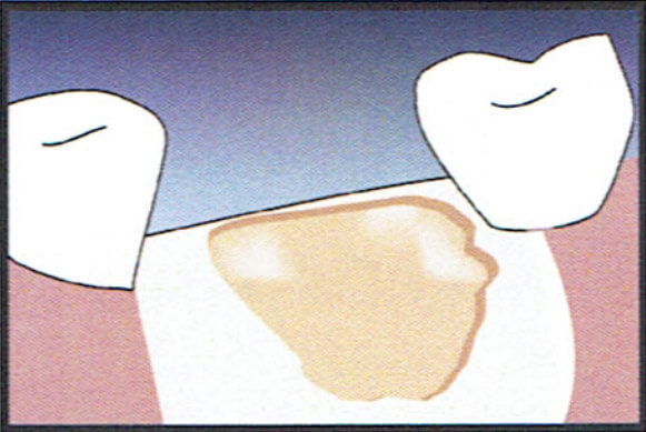 Socket Graft Diagram 1