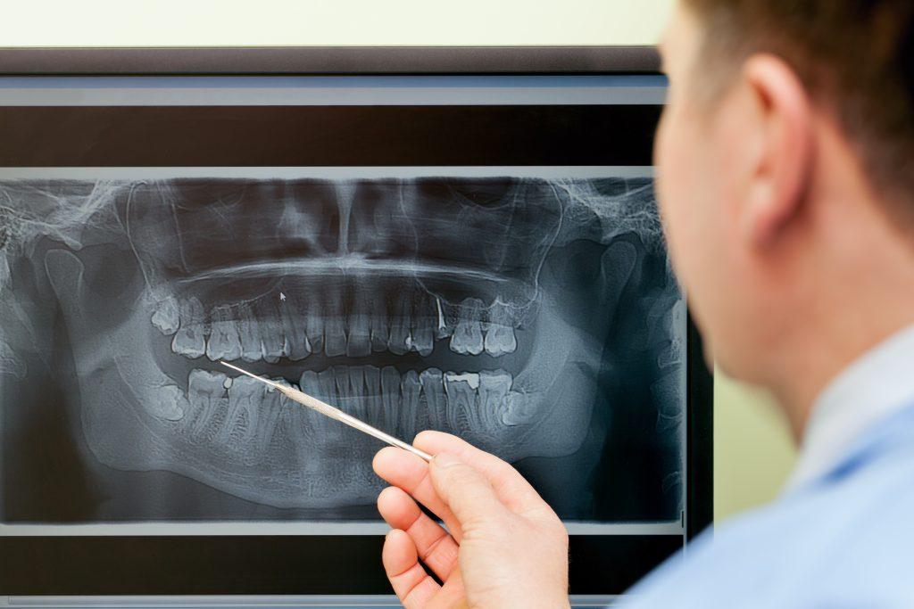 dentist pointing at an x-ray prior to oral & maxillofacial surgery